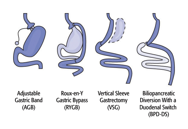 Various types of bariatric surgery